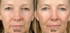 Thermage before and after shot