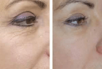 fractional ablatives before and after