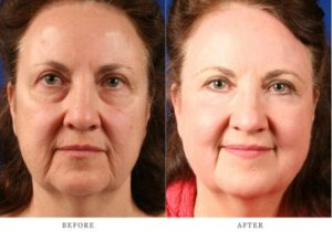 laser resurfacing before and after shots