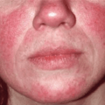 makeup-for-rosacea