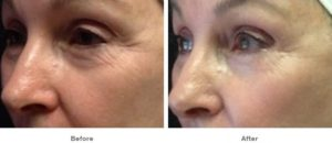 ultherapy before and after shot