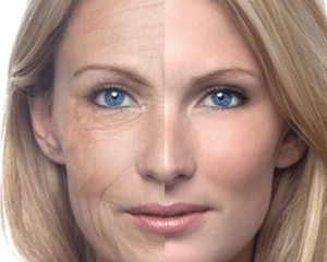 Anti-aging products took 20 yrs off her face!