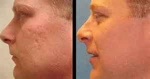 get rid of acne acars