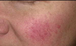 probiotics benefits for skin extend to rosacea