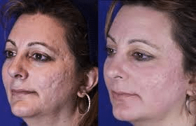 improve appearance of acne scars