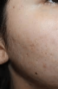 best treatments for acne scarring
