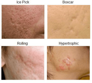 remedies for scars on face