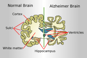 acetyl carnitine is good for alzheimer's treatment